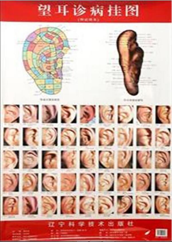 望耳诊病挂图:附说明书